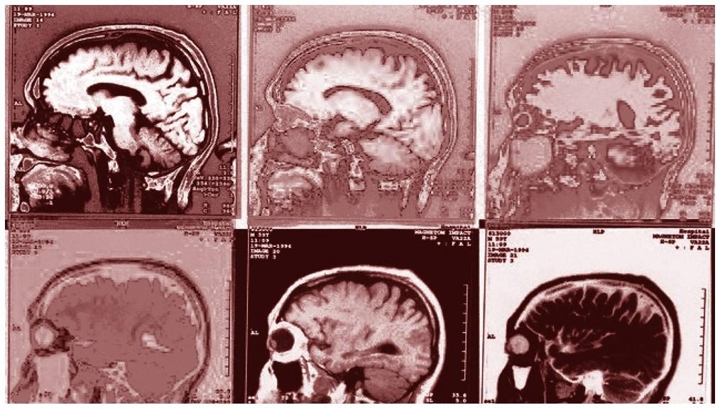 """Neexistují žádné laboratorní testy, skenování mozku, rentgeny nebo testy na """"chemickou nerovnováhu"""", které mohou potvrdit jakoukoli duševní poruchu jako fyzický stav"""