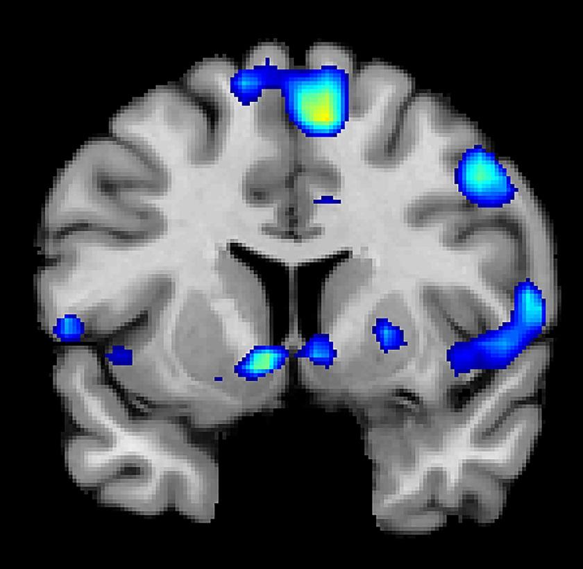 Neexistuje žádný vědeckých důkaz, že skeny mozku mohou potvrdit duševní nemoci